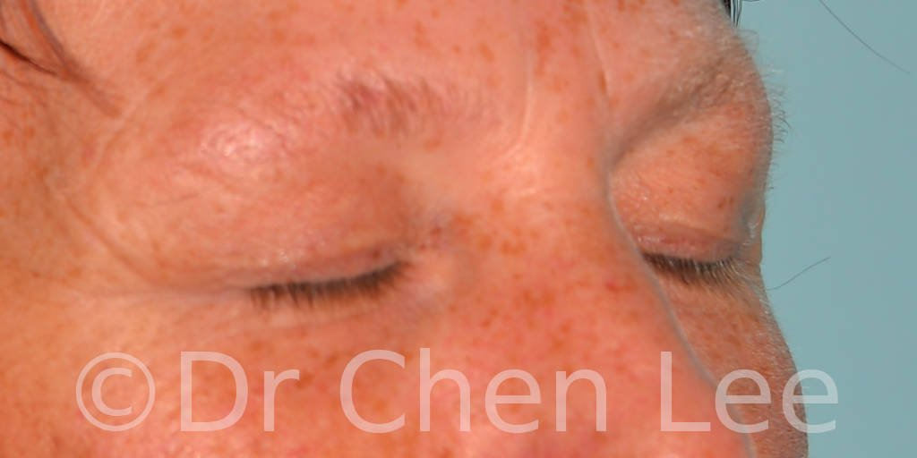 Blepharoplasty before after eyelid surgery right oblique closed photo #13