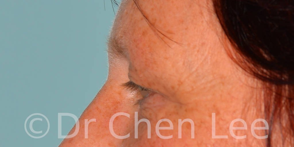 Blepharoplasty before after eyelid surgery left side photo #13