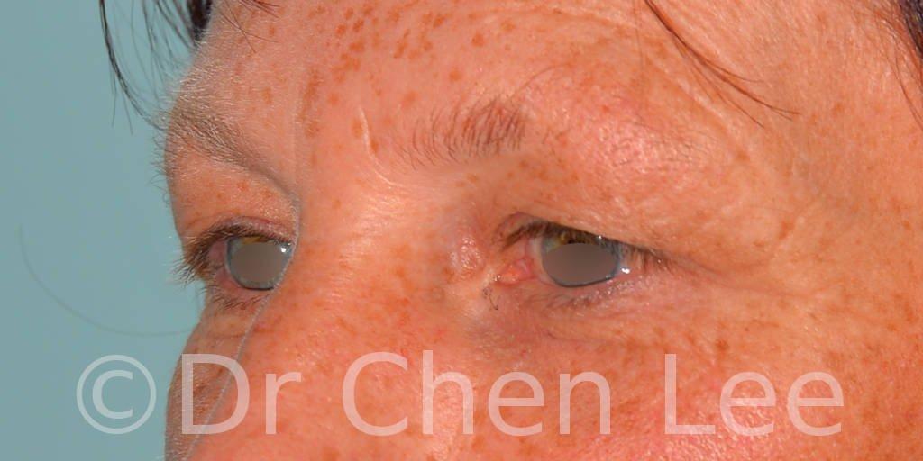 Blepharoplasty before after eyelid surgery left oblique photo #13