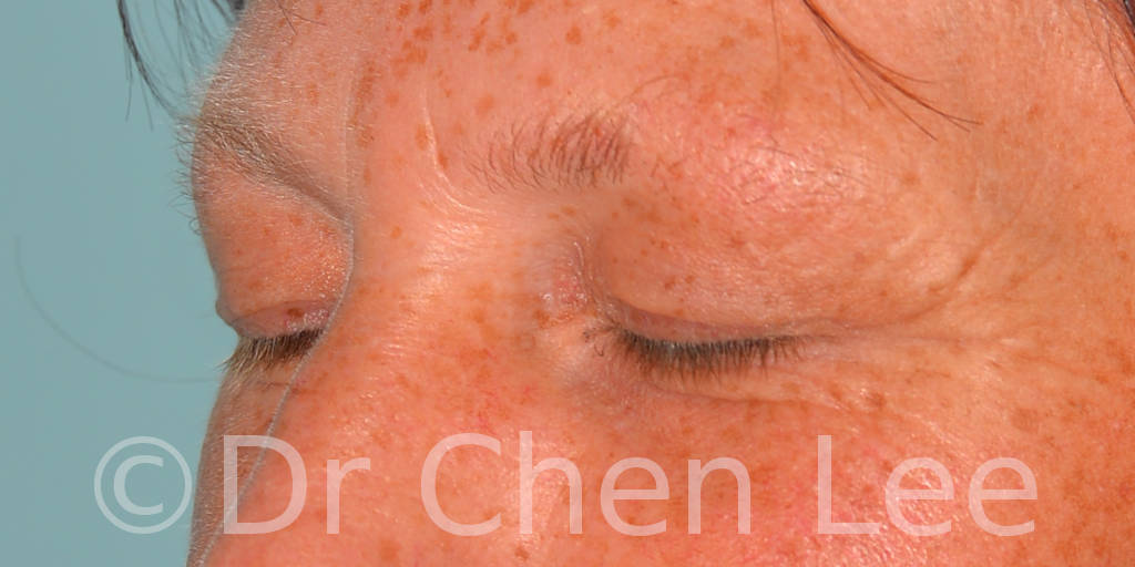 Blepharoplasty before after eyelid surgery left oblique closed photo #13