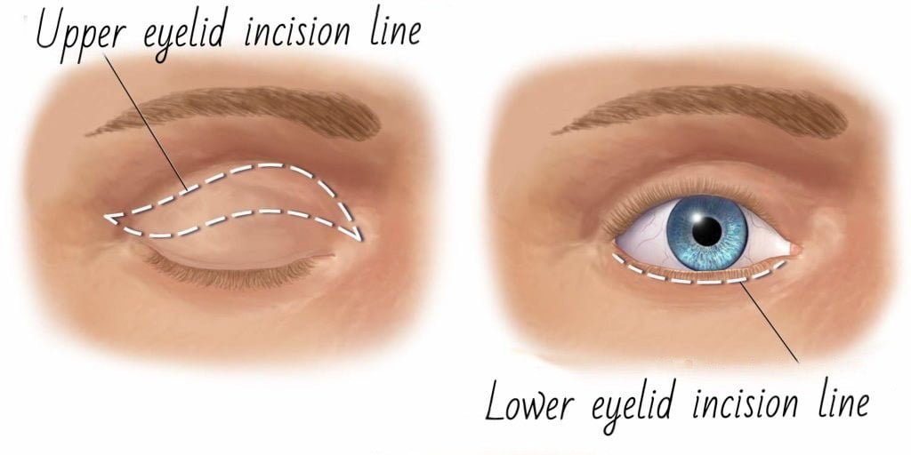 Eyelid incisions used in blepharoplasty