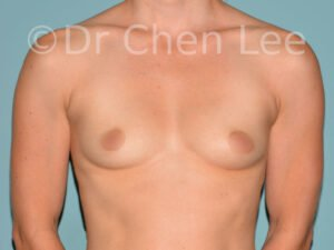 Breast augmentation/implant before after front photo #01