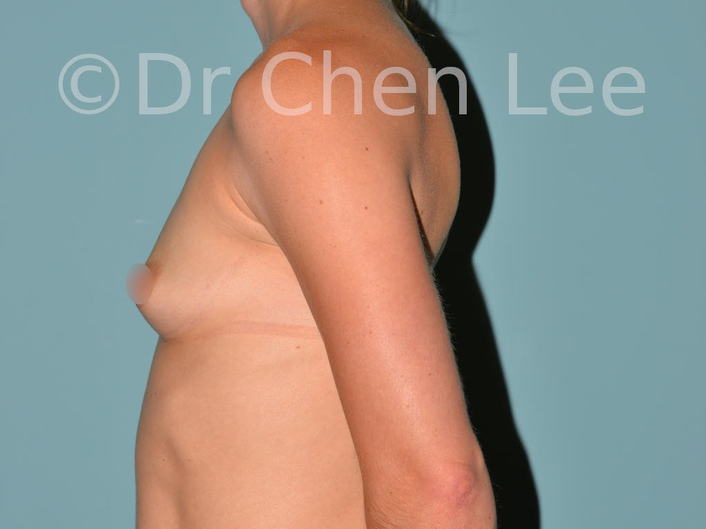 Breast augmentation/implant before after left side photo #01