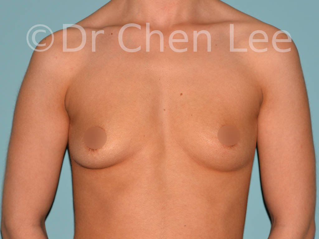 Breast augmentation/implant before after front photo #05