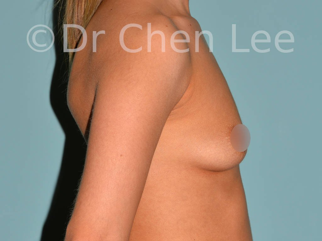 Breast augmentation/implant before after right side photo #05