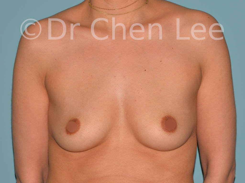 Breast augmentation/implant before after front photo #07