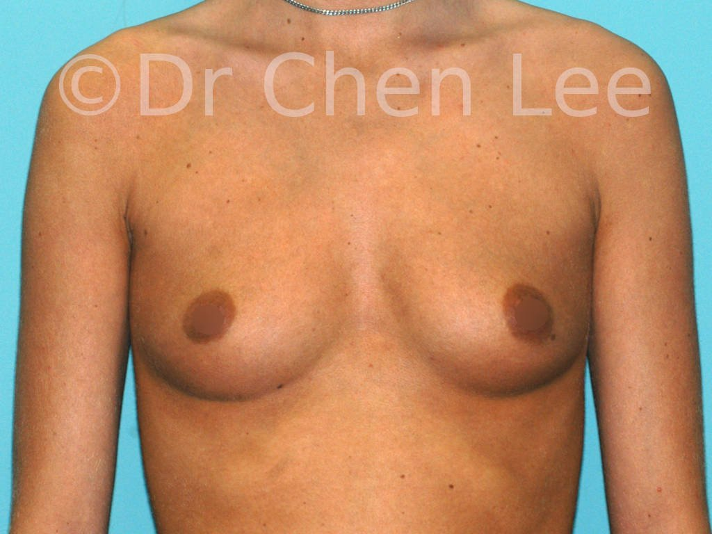 Breast augmentation/implant before after front photo #40