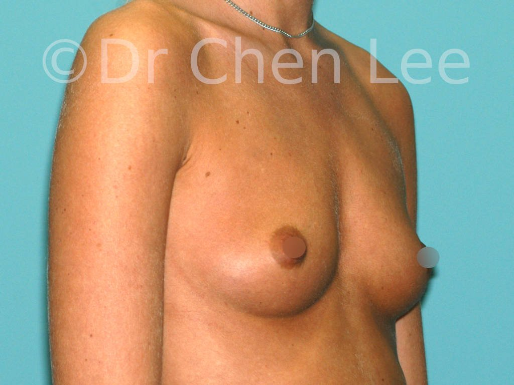 Breast augmentation/implant before after right oblique photo #40