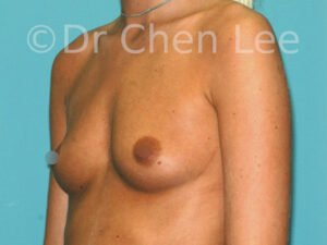 Breast augmentation/implant before after left oblique photo #10