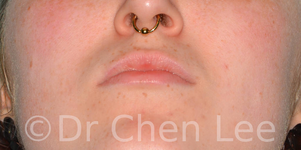 Lip augmentation before after hyaluronic acid injection chin up photo #01