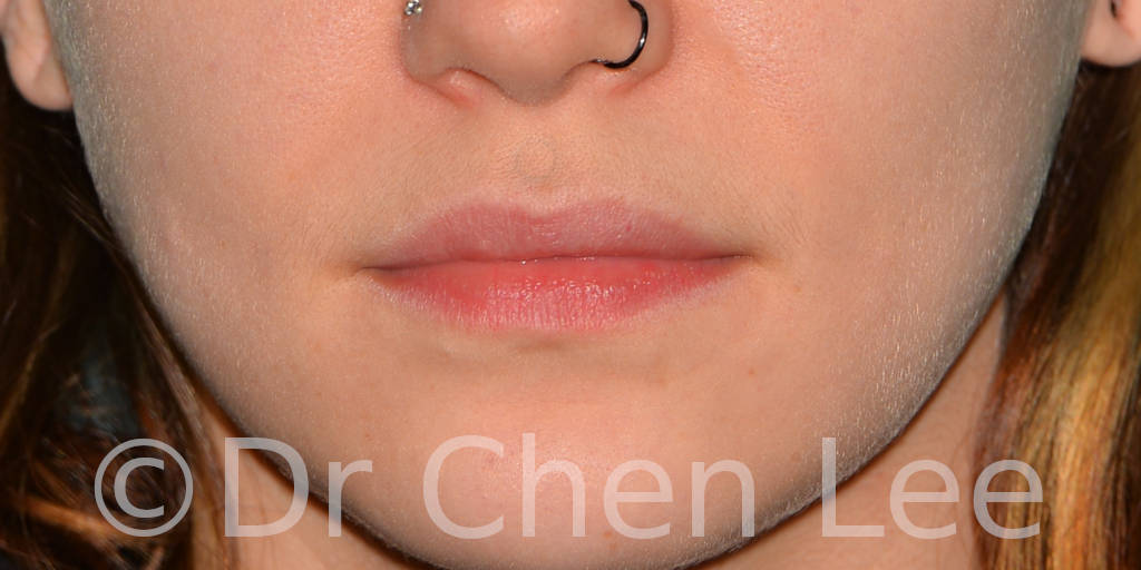 Lip augmentation before after hyaluronic acid injection front photo #02