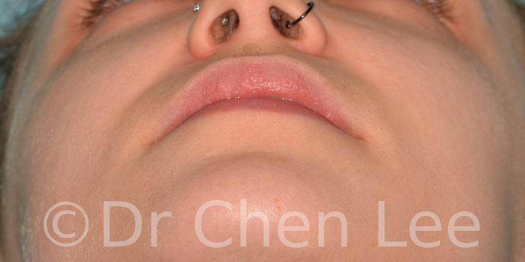 Lip augmentation before after hyaluronic acid injection chin up photo #02