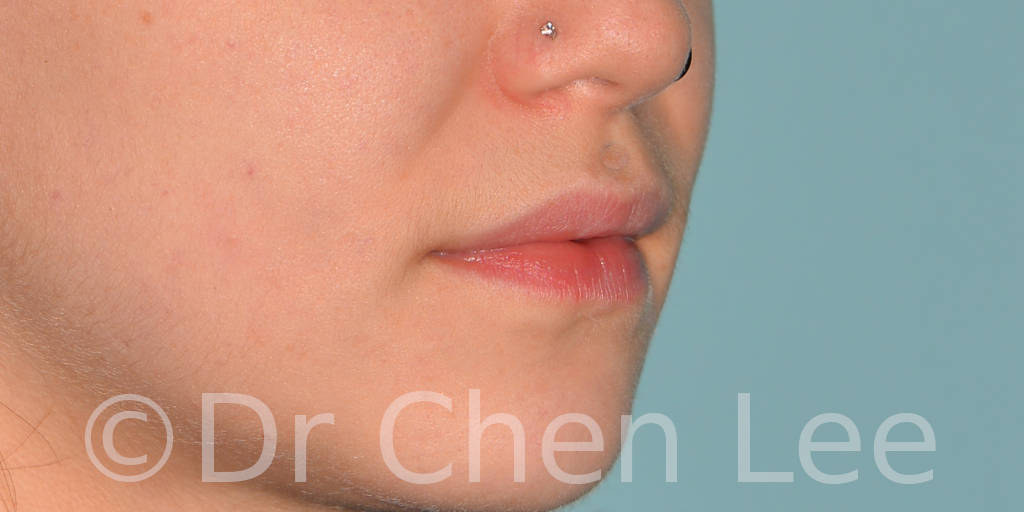 Lip augmentation before after hyaluronic acid injection right oblique photo #02