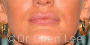 Lip augmentation before after hyaluronic acid injection front photo #03