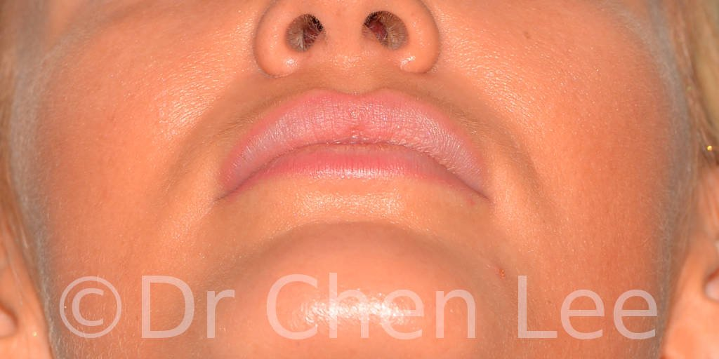 Lip augmentation before after hyaluronic acid injection chin up photo #03