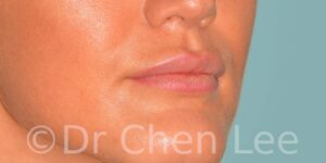 Lip augmentation before after hyaluronic acid injection right oblique photo #03