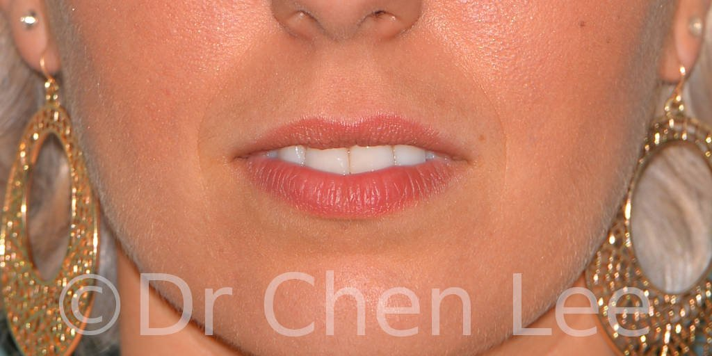 Lip augmentation before after hyaluronic acid injection front photo #04
