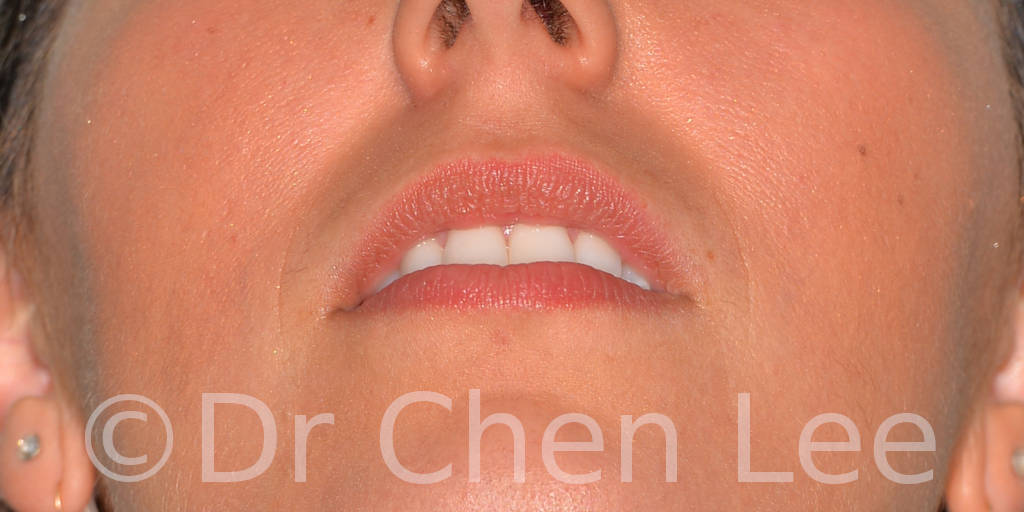 Lip augmentation before after hyaluronic acid injection chin up photo #04