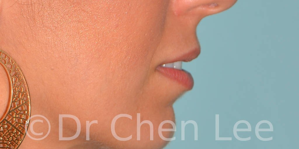 Lip augmentation before after hyaluronic acid injection right side photo #04
