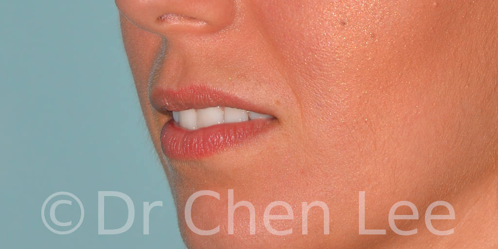 Lip augmentation before after hyaluronic acid injection left oblique photo #04