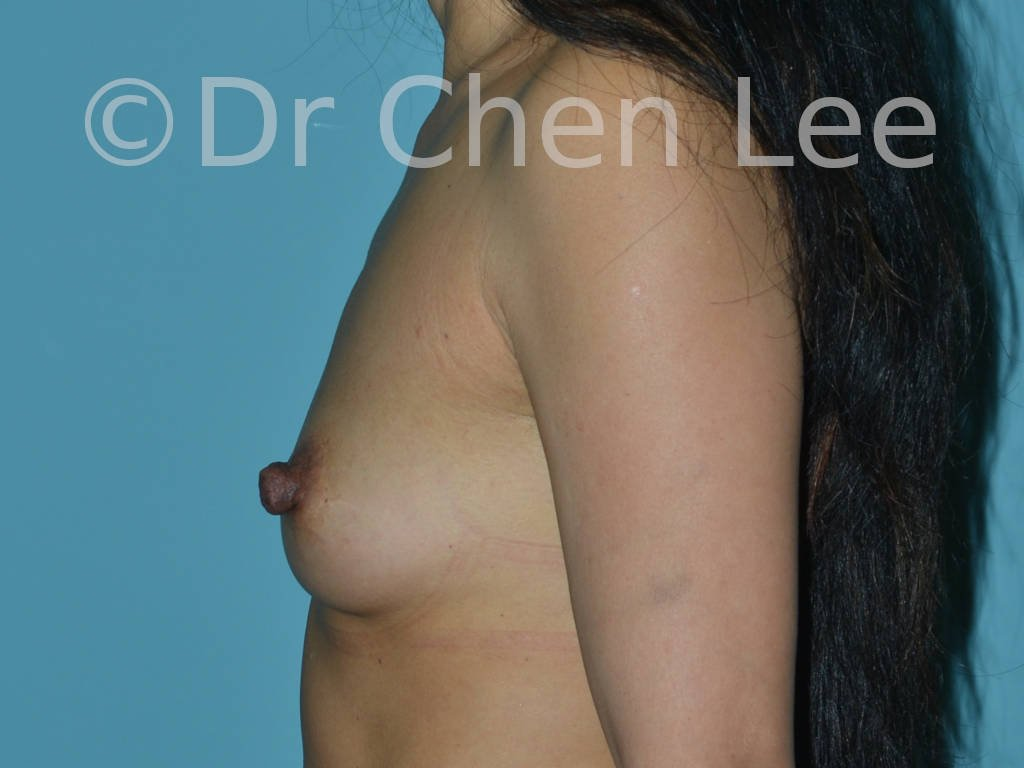 Nipple reduction before after left side photo #05