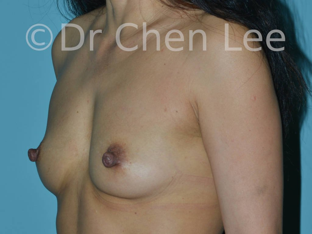 Nipple reduction before after left oblique photo #05