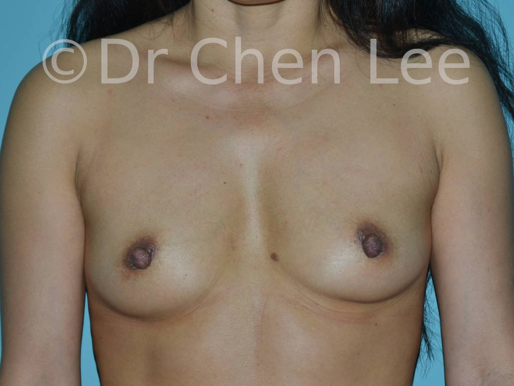 Nipple reduction before after front photo #05