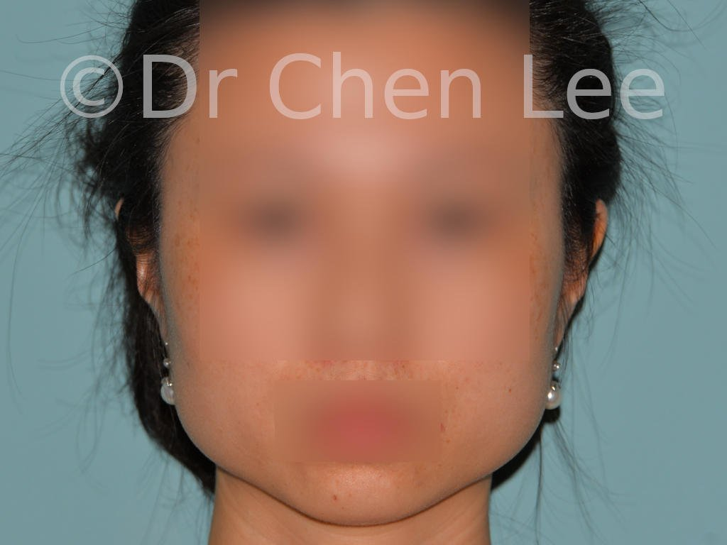 Masster reduction before after Botox-Dysport injection front photo #01